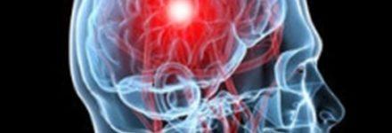 Neurochirurgia - img